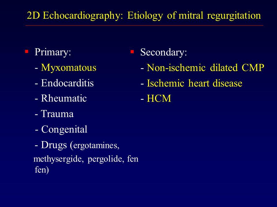 2D Echocardiography: Etiology of mitral regurgitation