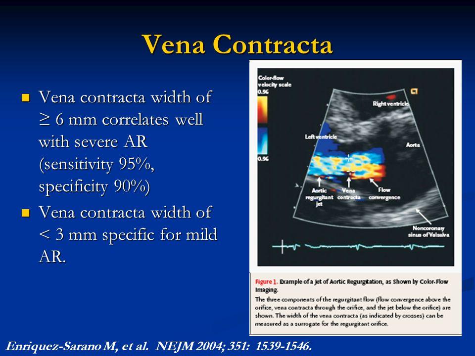 Vena Contracta Vena contracta width of ≥ 6 mm correlates well with severe AR (sensitivity 95%, specificity 90%)