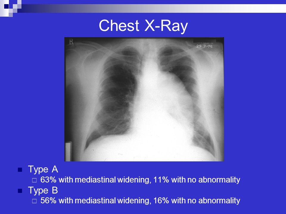 Chest X-Ray Type A Type B