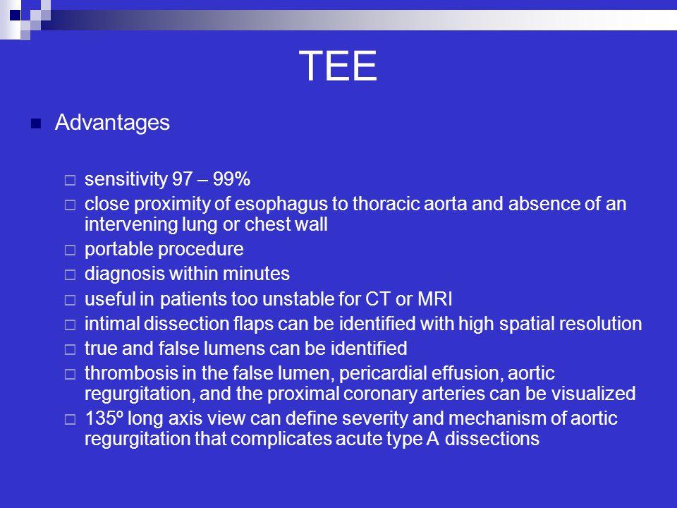 TEE Advantages sensitivity 97 – 99%