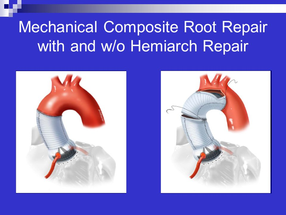 Mechanical Composite Root Repair with and w/o Hemiarch Repair