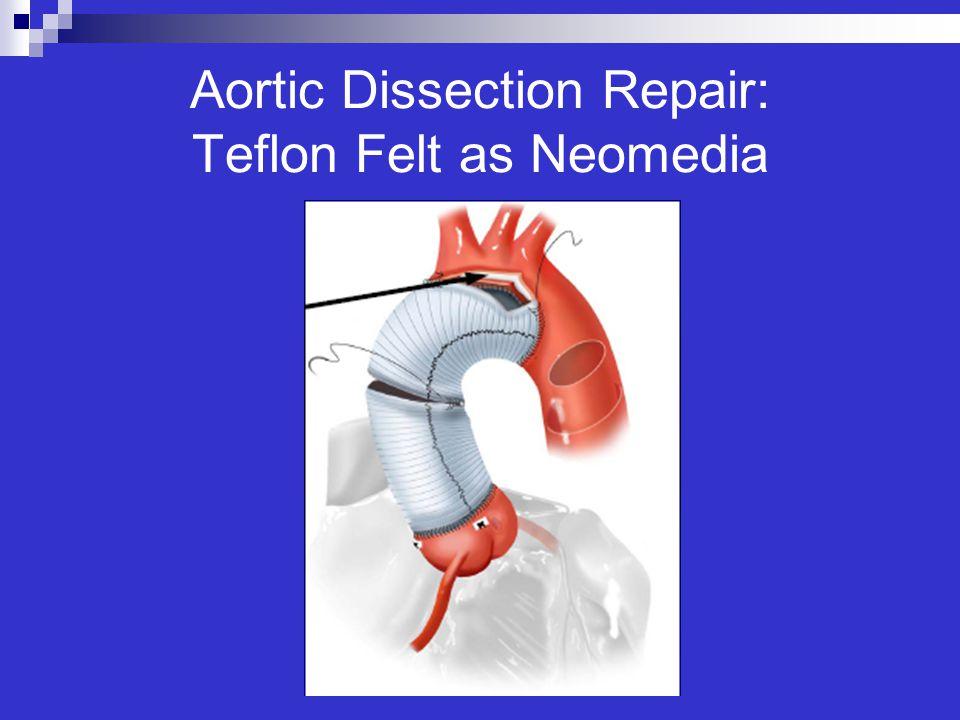 Aortic Dissection Repair: Teflon Felt as Neomedia