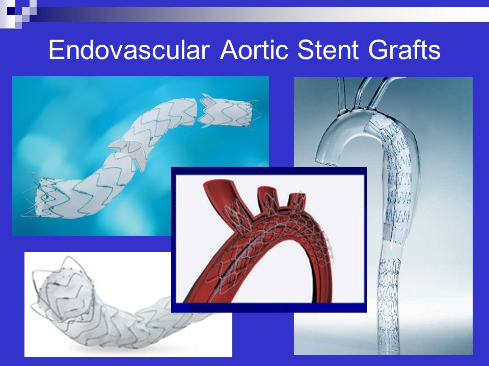 Endovascular Aortic Stent Grafts