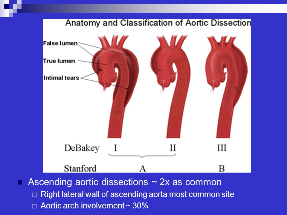Ascending aortic dissections ~ 2x as common