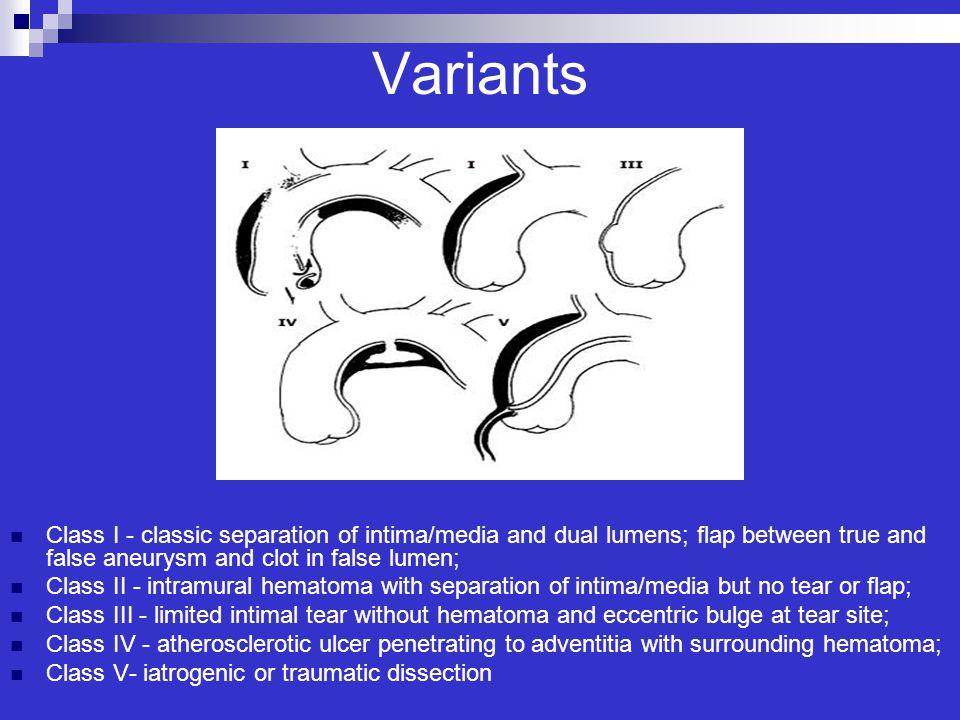 Variants Class I - classic separation of intima/media and dual lumens; flap between true and false aneurysm and clot in false lumen;