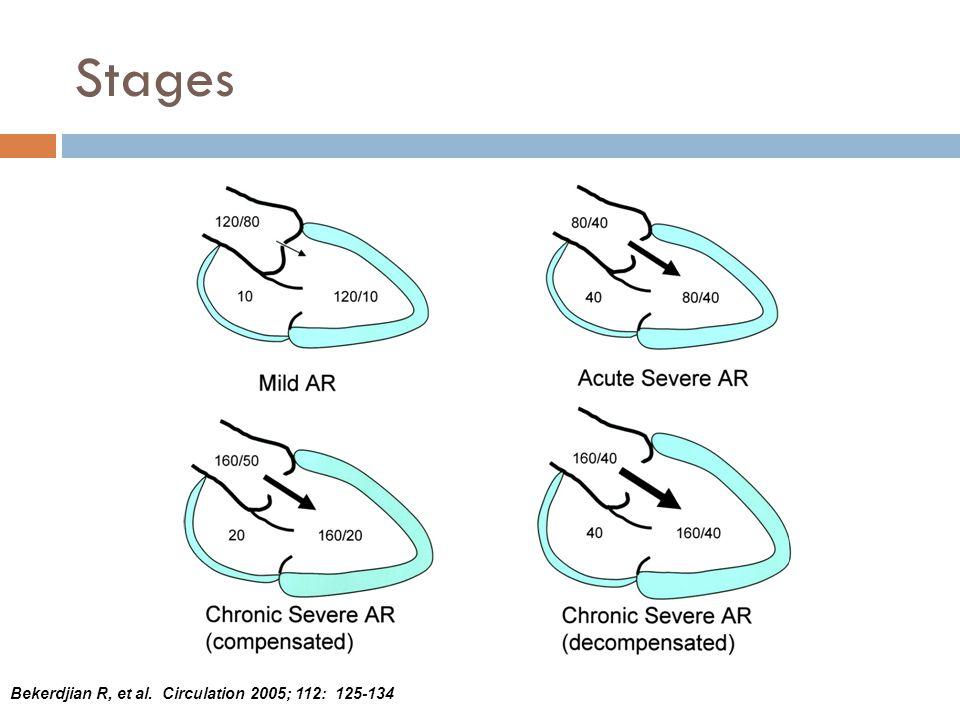 Stages Bekerdjian R, et al. Circulation 2005; 112: 125-134