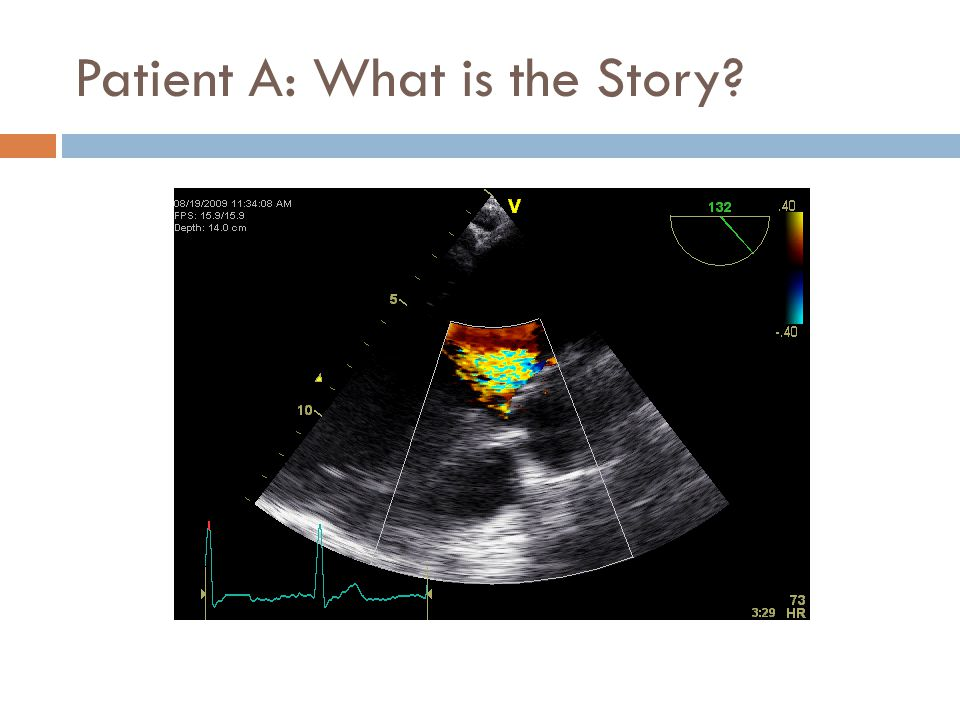 Patient A: What is the Story