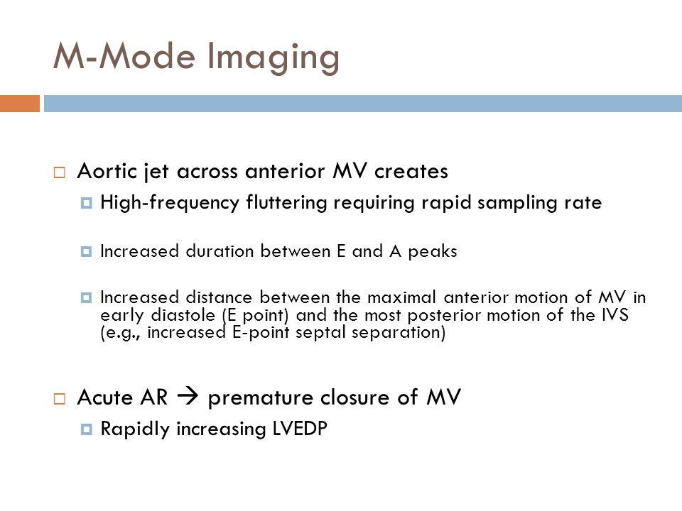 M-Mode Imaging Aortic jet across anterior MV creates