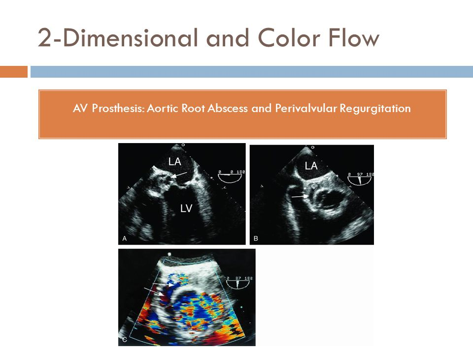 2-Dimensional and Color Flow