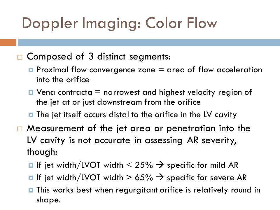Doppler Imaging: Color Flow
