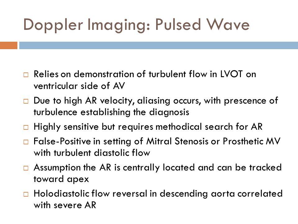 Doppler Imaging: Pulsed Wave