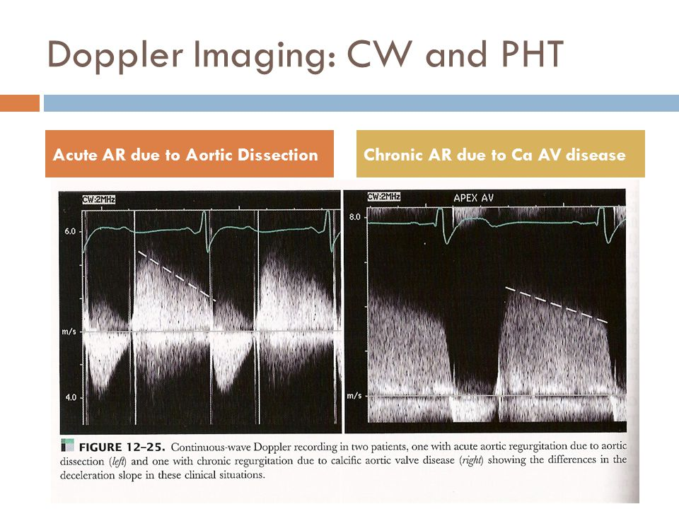 Doppler Imaging: CW and PHT