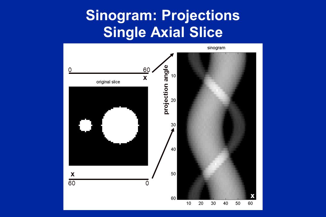 Sinogram: Projections Single Axial Slice