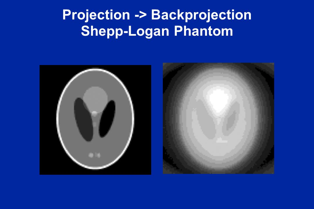 Projection -> Backprojection Shepp-Logan Phantom