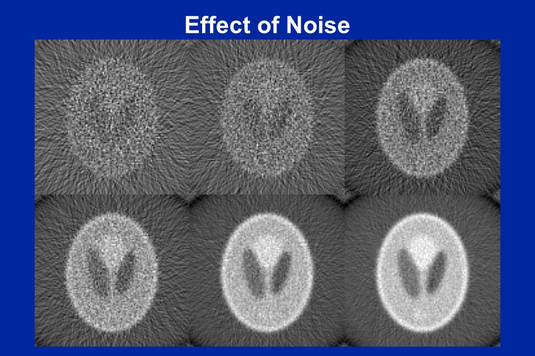 Effect of Noise Reconstruction noise is high spatial frequency, i.e. detail. Looks wormy. Especially see the first image.