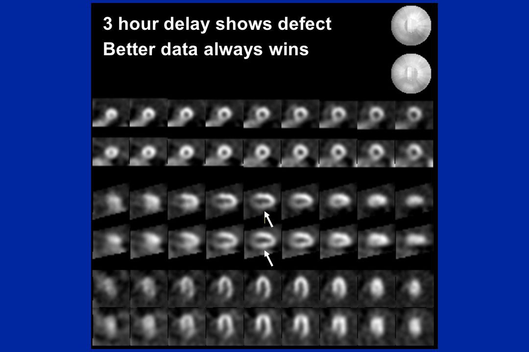 3 hour delay shows defect Better data always wins