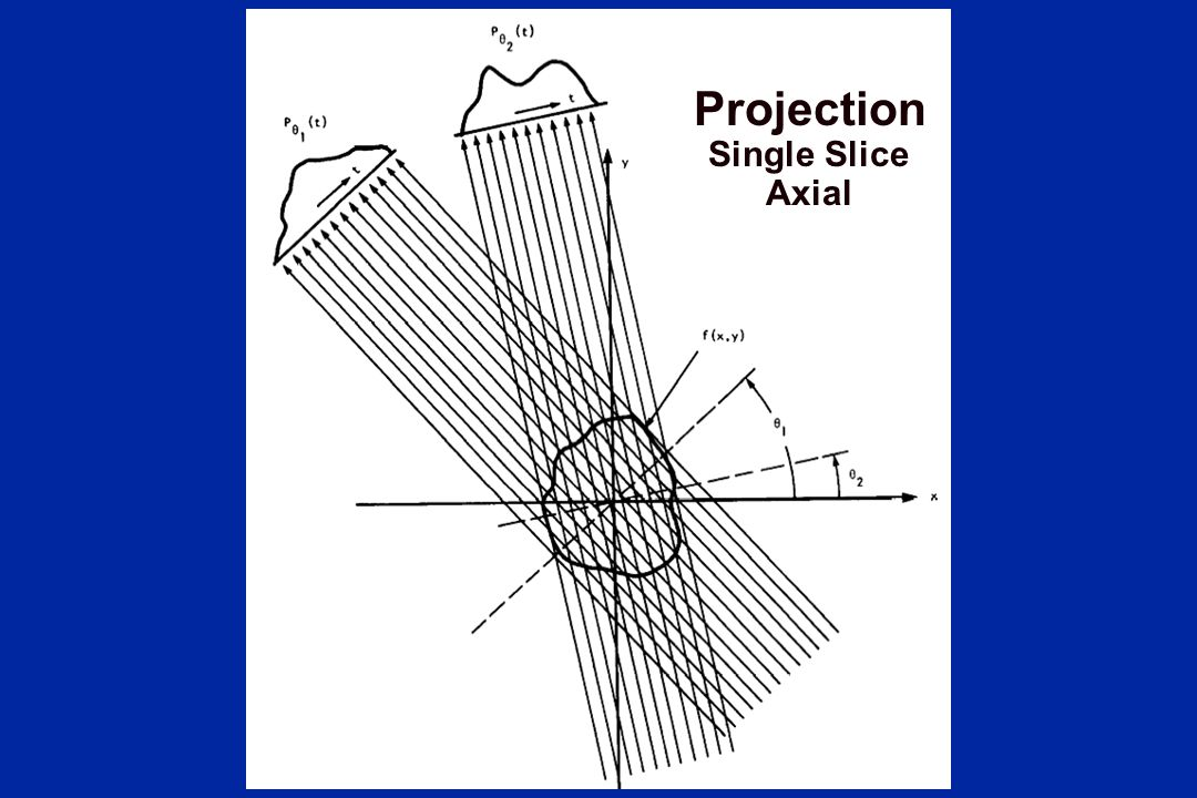 Projection Single Slice Axial What's a projection