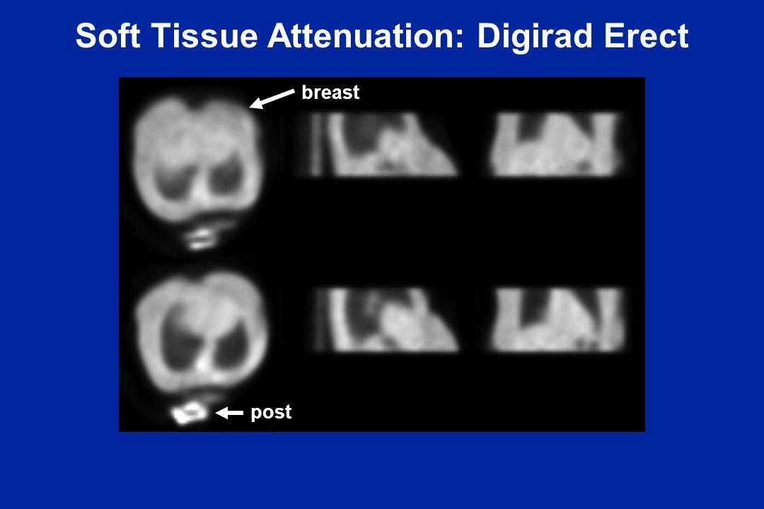 Soft Tissue Attenuation: Digirad Erect