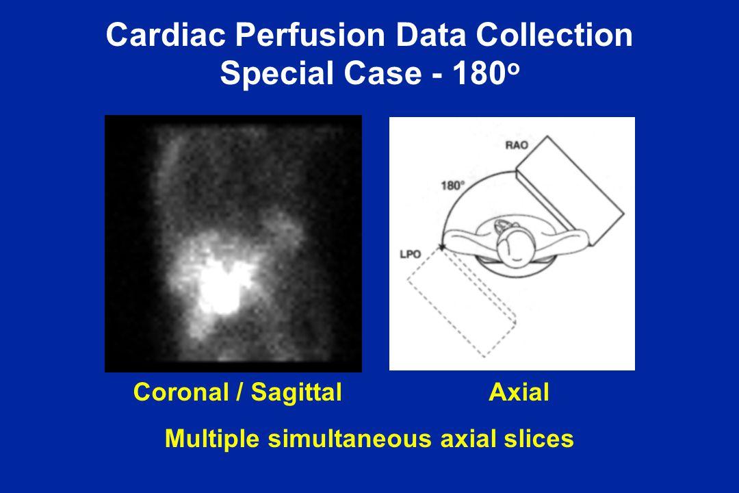 Cardiac Perfusion Data Collection Special Case - 180o