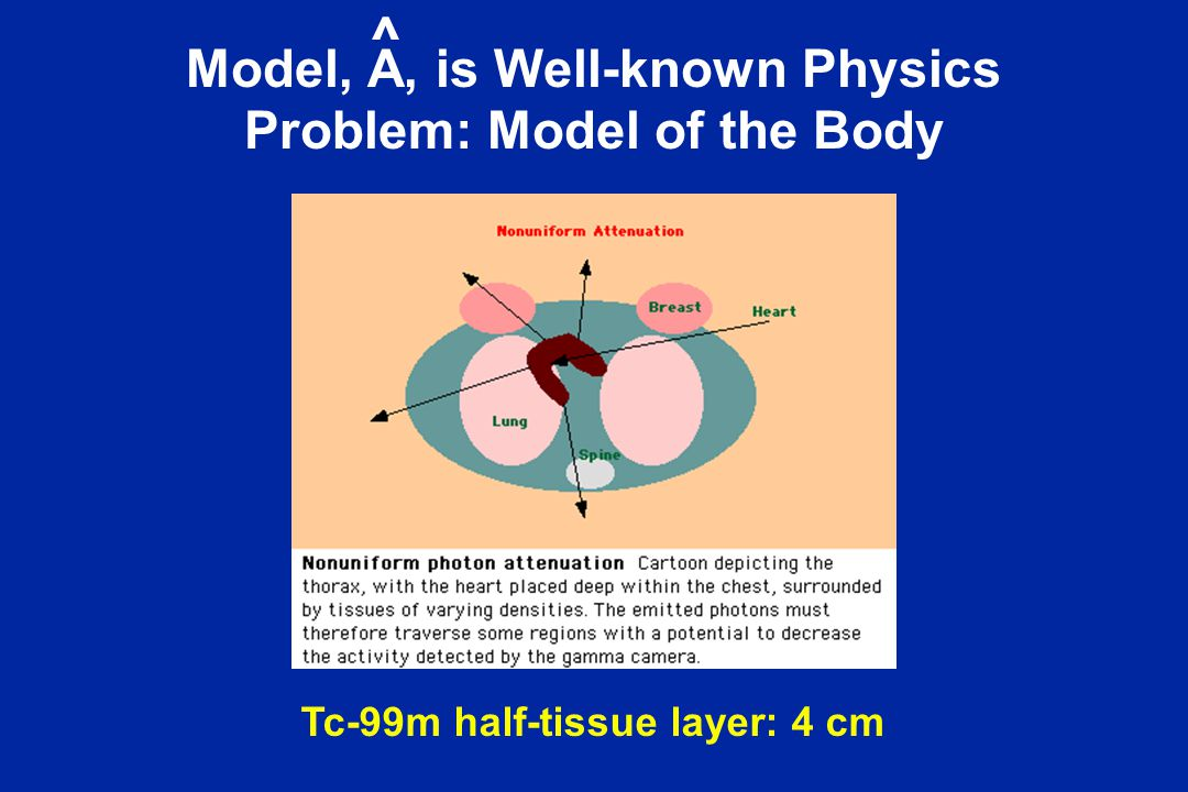 Model, A, is Well-known Physics Problem: Model of the Body