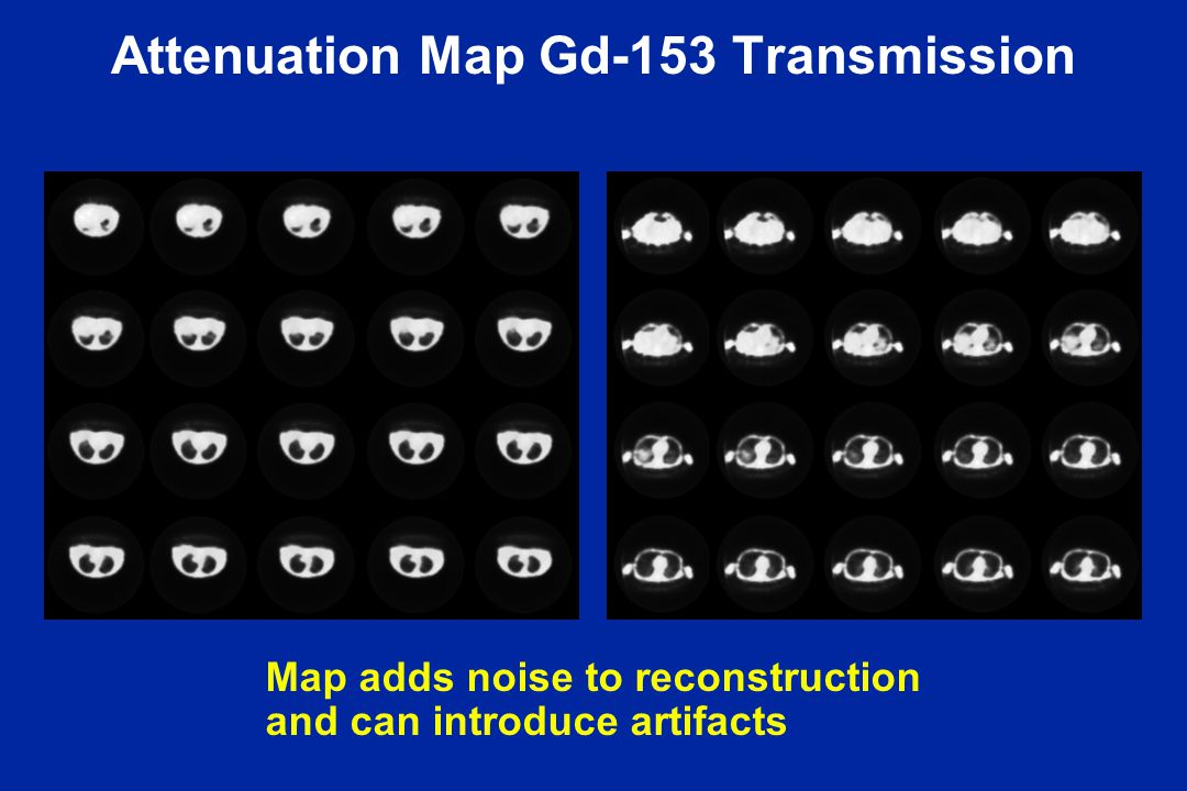 Attenuation Map Gd-153 Transmission