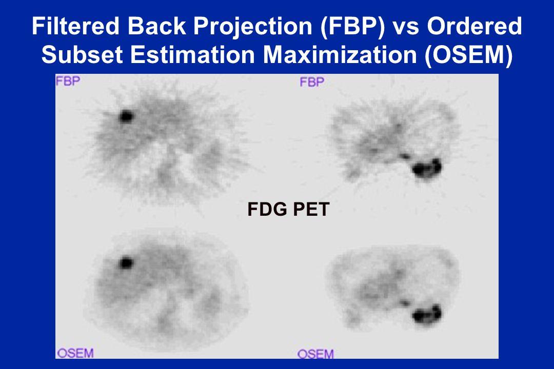 Filtered Back Projection (FBP) vs Ordered Subset Estimation Maximization (OSEM)