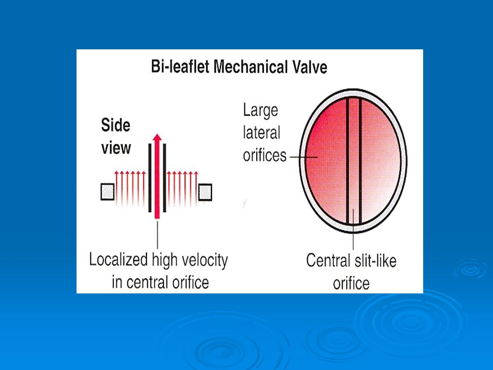 The most complex fluid dynamics are from bileaflet mechanical valves