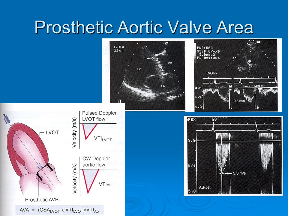 Prosthetic Aortic Valve Area