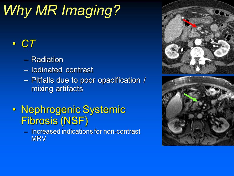 Why MR Imaging CT Nephrogenic Systemic Fibrosis (NSF) Radiation