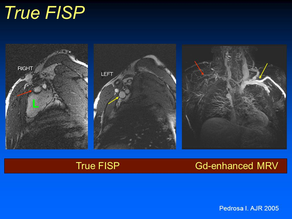 True FISP L True FISP Gd-enhanced MRV Pedrosa I. AJR 2005