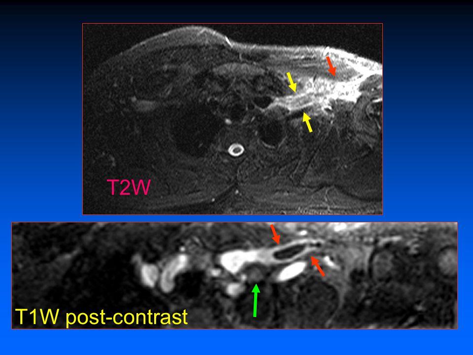 T2W T1W post-contrast Trombosis aguda/subaguda Primaria