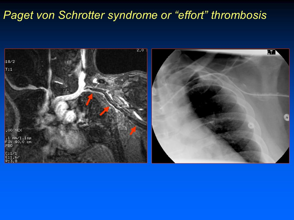 Paget von Schrotter syndrome or effort thrombosis