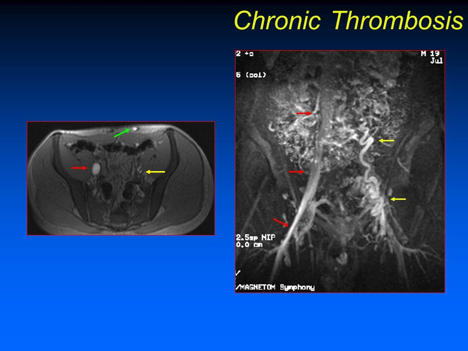Chronic Thrombosis FIGURE 15