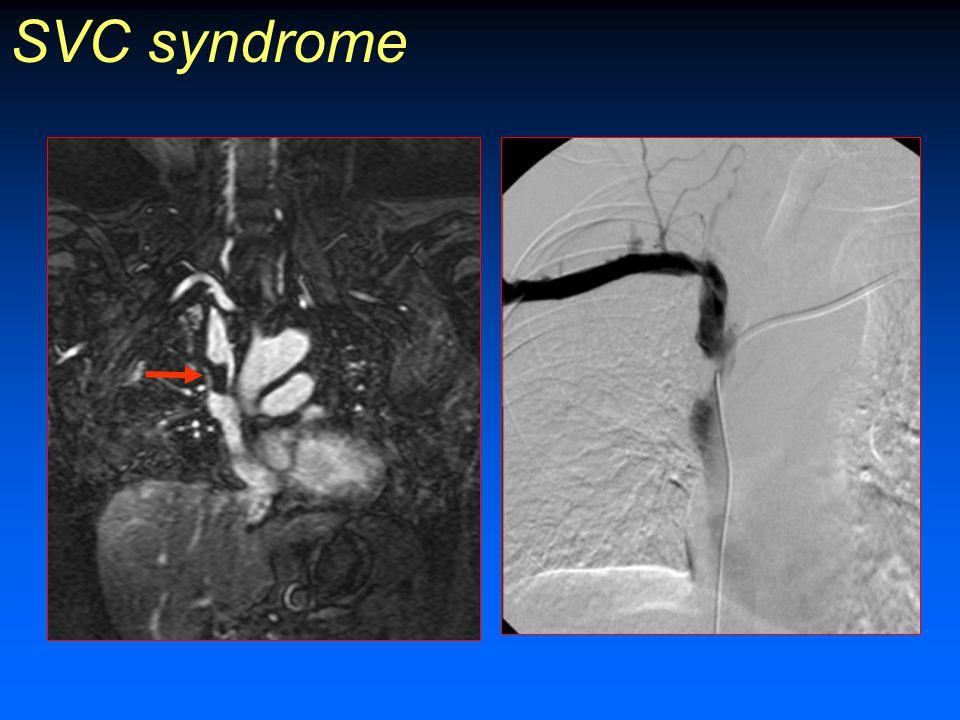 SVC syndrome Estrechamiento / obstrucción VCS