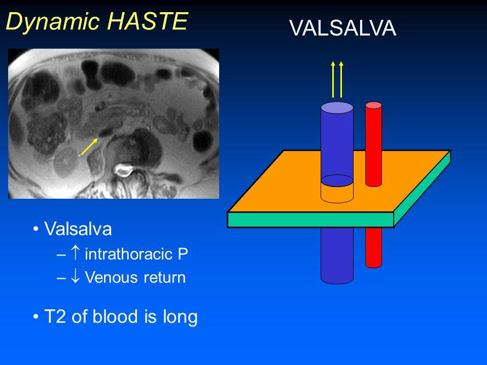 Dynamic HASTE VALSALVA Intravascular signal void Valsalva