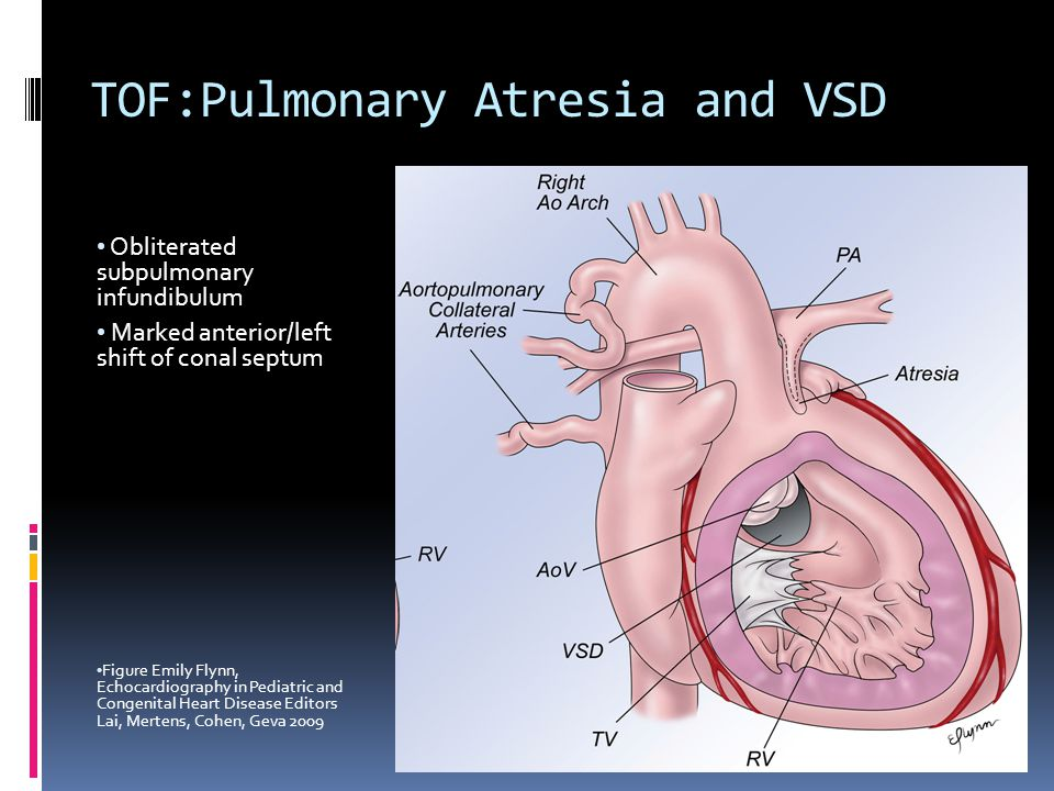 TOF:Pulmonary Atresia and VSD