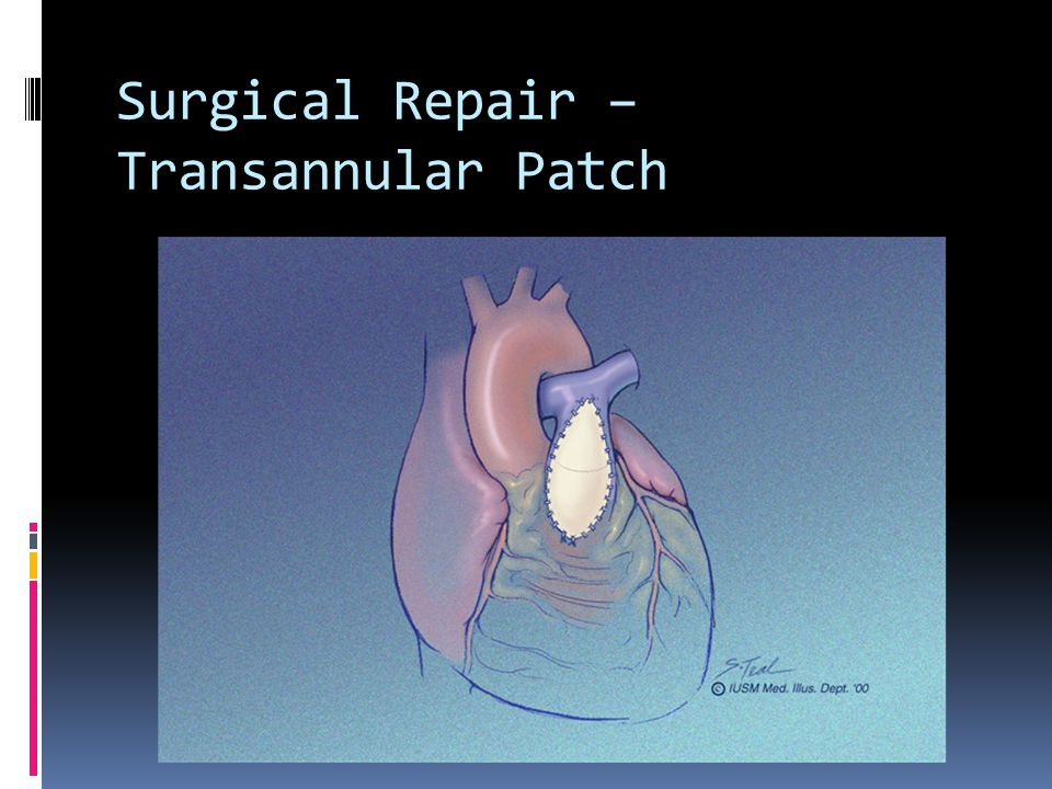 Surgical Repair – Transannular Patch