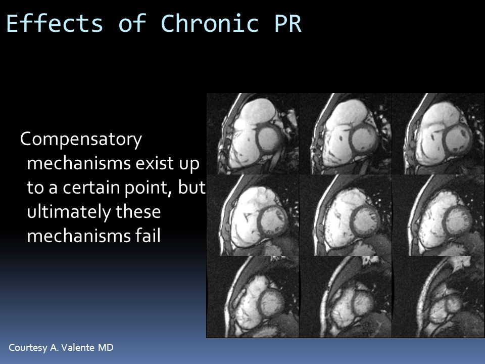 Effects of Chronic PR Compensatory mechanisms exist up to a certain point, but ultimately these mechanisms fail.