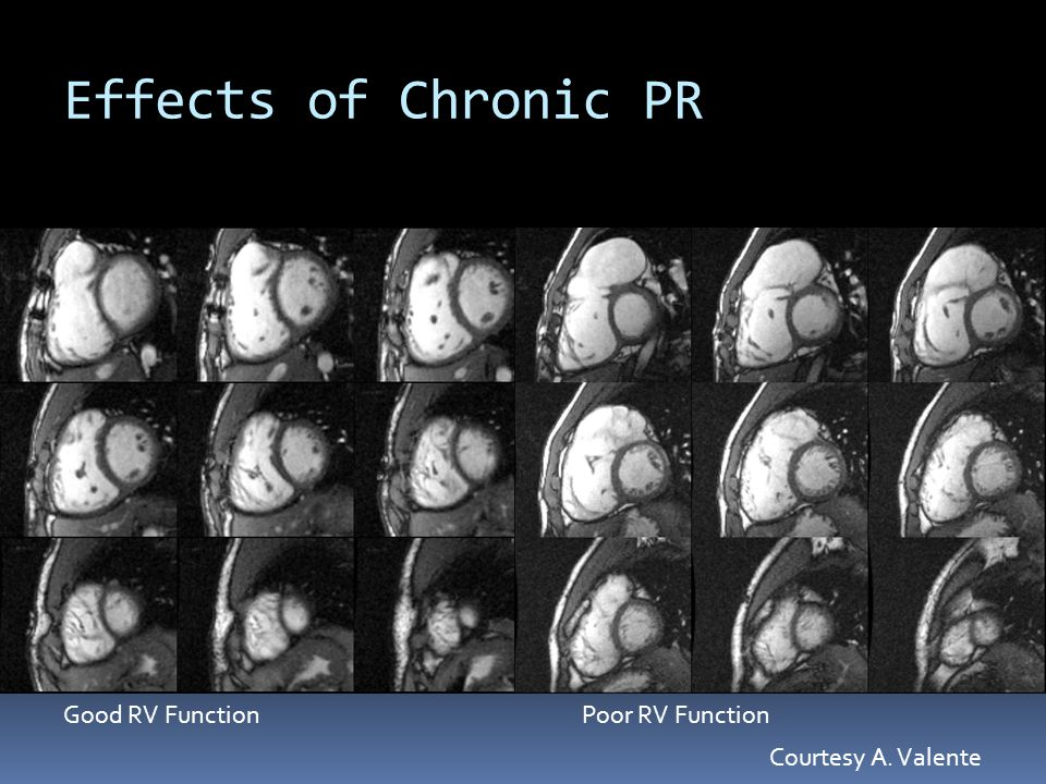 Effects of Chronic PR Good RV Function Poor RV Function