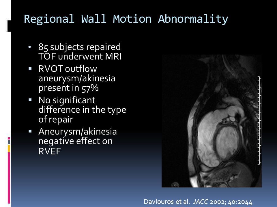 Regional Wall Motion Abnormality