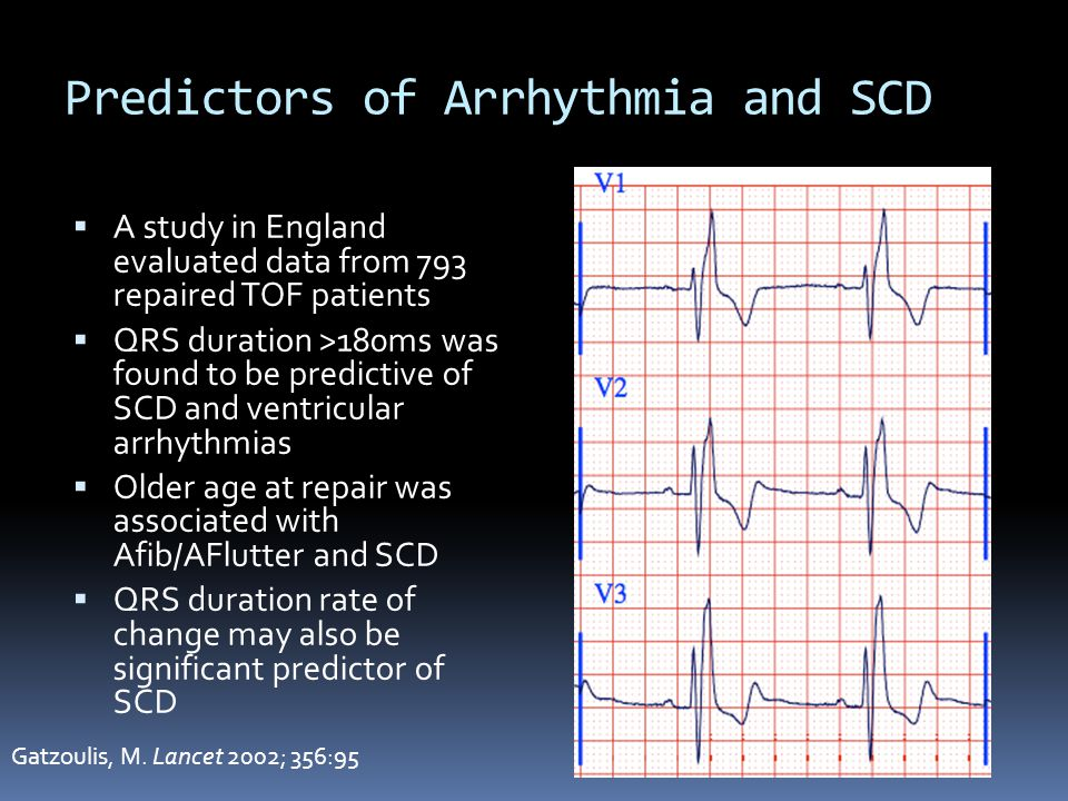 Predictors of Arrhythmia and SCD
