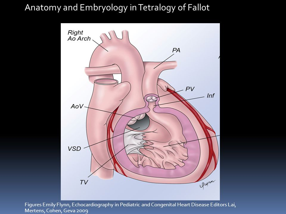 Anatomy and Embryology in Tetralogy of Fallot