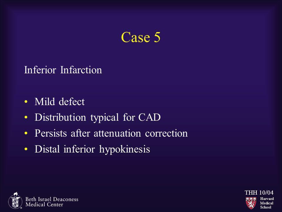 Case 5 Inferior Infarction Mild defect Distribution typical for CAD