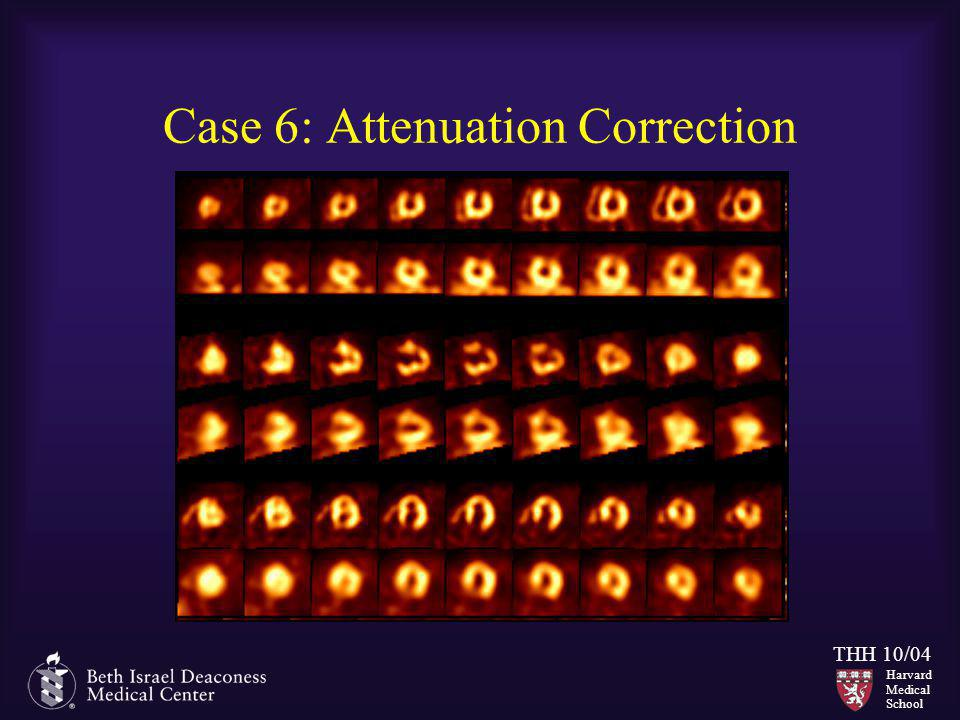Case 6: Attenuation Correction