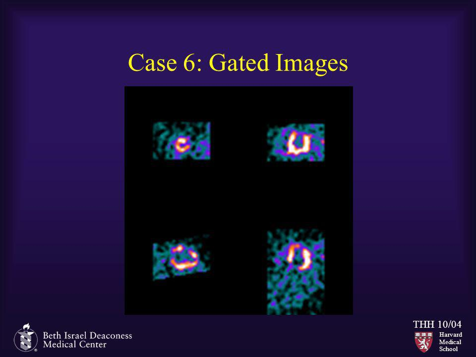 Case 6: Gated Images