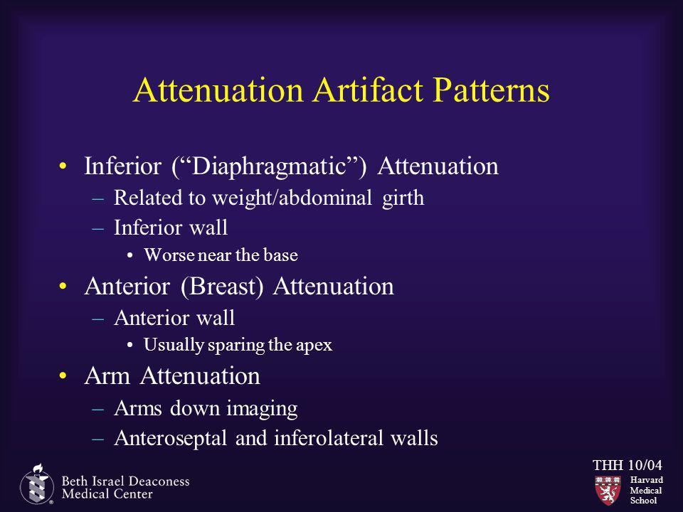 Attenuation Artifact Patterns