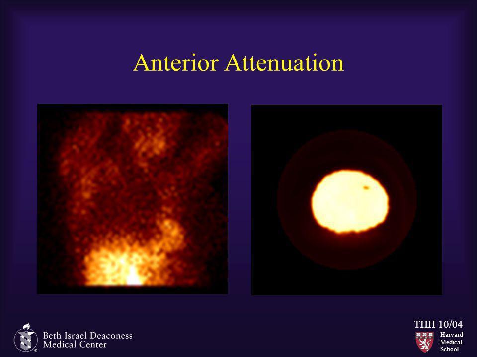 Anterior Attenuation