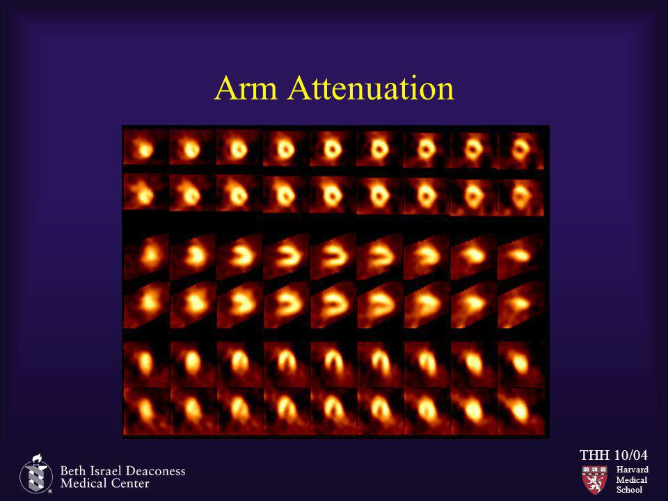 Arm Attenuation