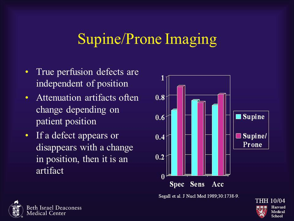 Supine/Prone Imaging True perfusion defects are independent of position. Attenuation artifacts often change depending on patient position.