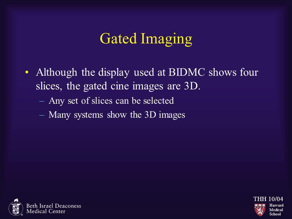 Gated Imaging Although the display used at BIDMC shows four slices, the gated cine images are 3D. Any set of slices can be selected.